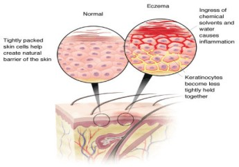 Blog Eczema Diet Review Cure Your Eczema Now